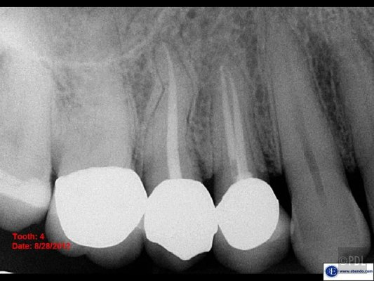 Hidden Missed Canal Diagnosis Pure Dental Learning